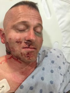 Retired LTC Ojeda in the hospital after the May 8th attacks